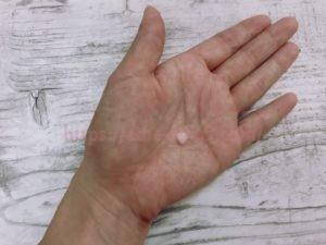 ハイドロキノン 皮膚科 体験談